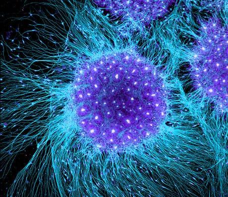 rosette neurali
